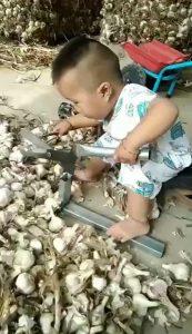 Bebé chino con cizalla
